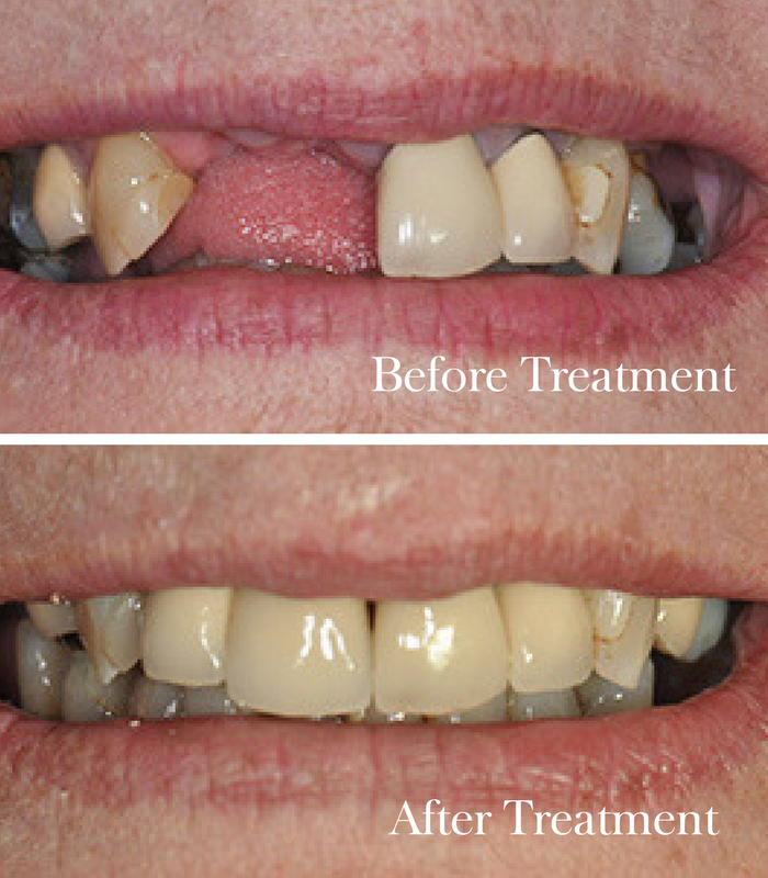 Esthers Story before and after dental implants