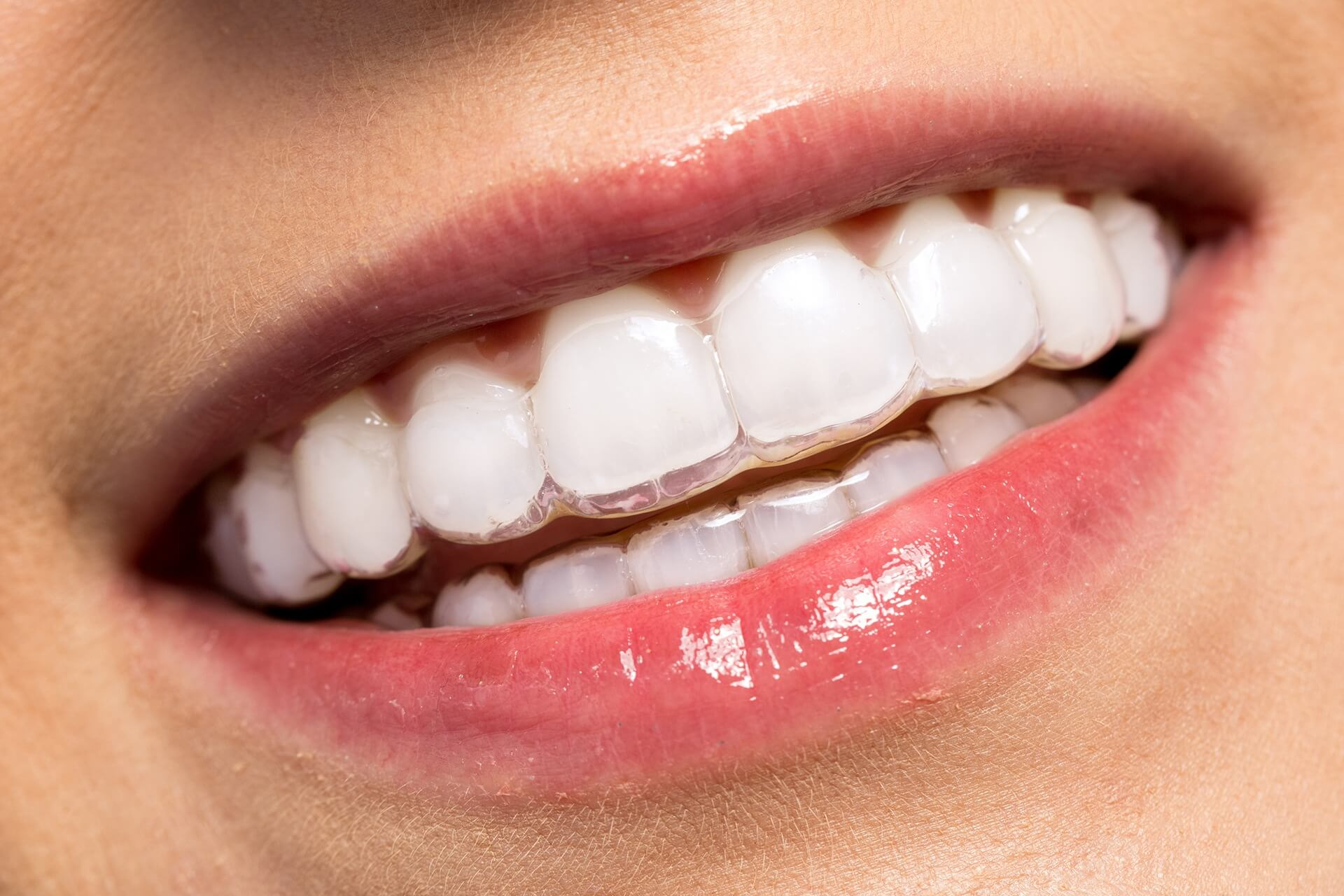 invisible-braces-invisalign-bury-st-edmunds