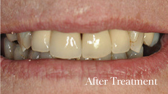 Esthers-Implants-After-Guildhall-Dental