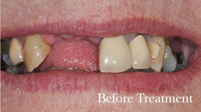 Esthers-Implants-before-Guildhall-Dental